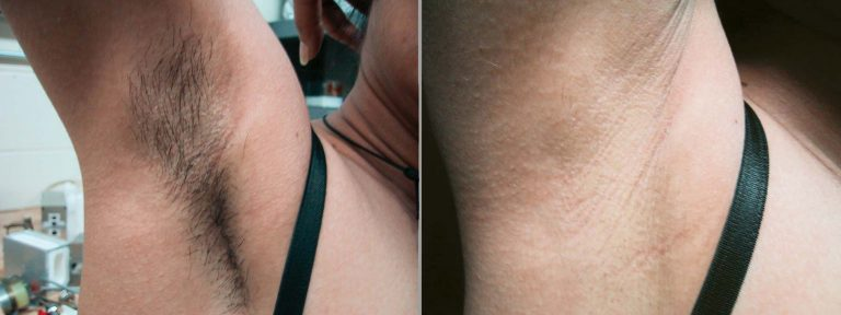 result_laser-hair-removal-768x288